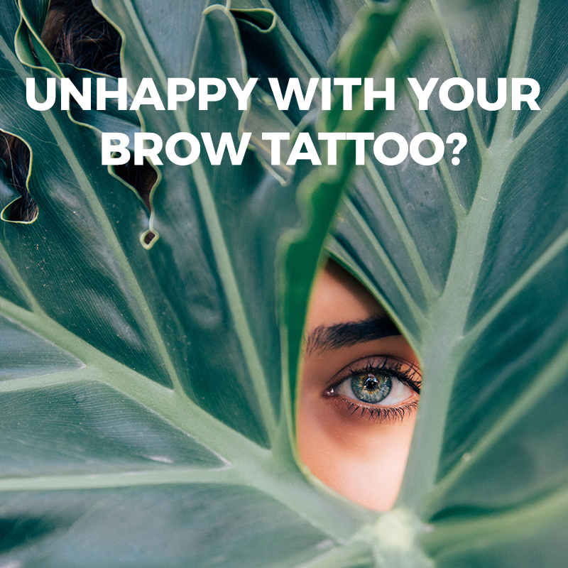 Brow Removal